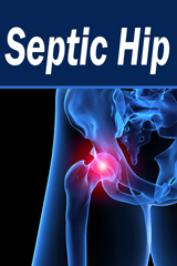 Septic Hip Calculator